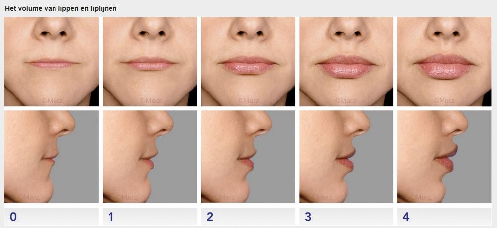 Volume lippen